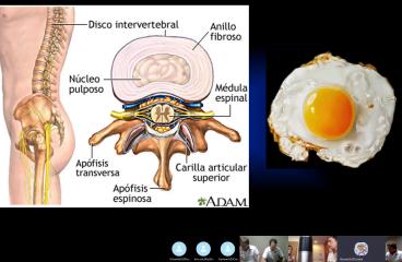Dra. Ceratto Rossana: Avances en hernias discales
